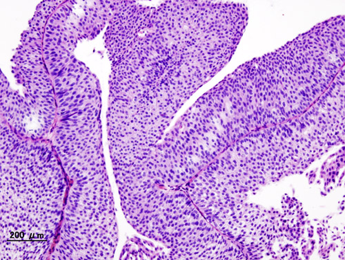Urothelkarzinom (Bladder_urothelial_carcinoma)