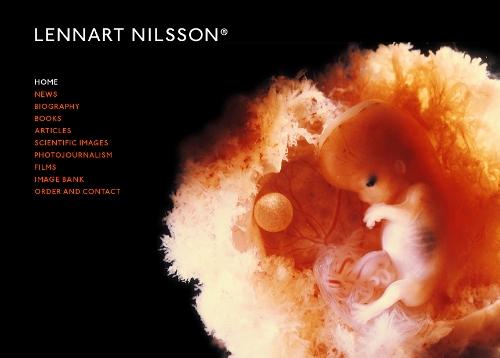 Auf das Bild (Screenshot) klicken führt zur Homepage von Lennart Nilsson