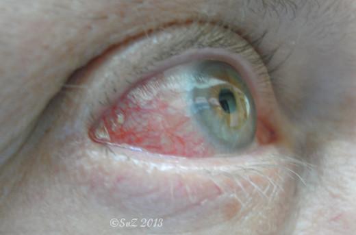 Bild: Positiv gedacht: gekriegt habe ich schnelle kompetente Hilfe durch einen Augenarzt (kurz vor Feierabend).